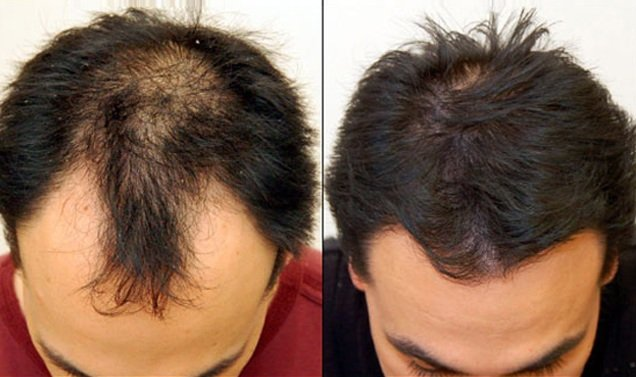 Artificial Hair Transplant in India
