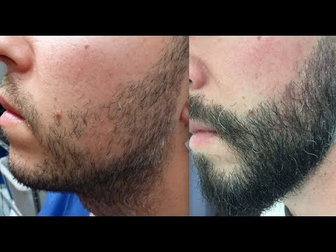 Facial Hair Transplant in India (Beard & Mustache)