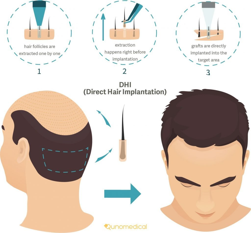 DHI Hair Transplant Procedure in India