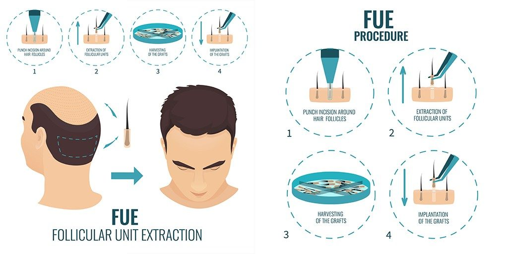 FUE Hair Transplant Procedure in India