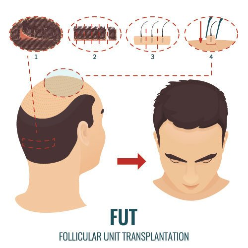 FUT Hair Transplant Procedure in India