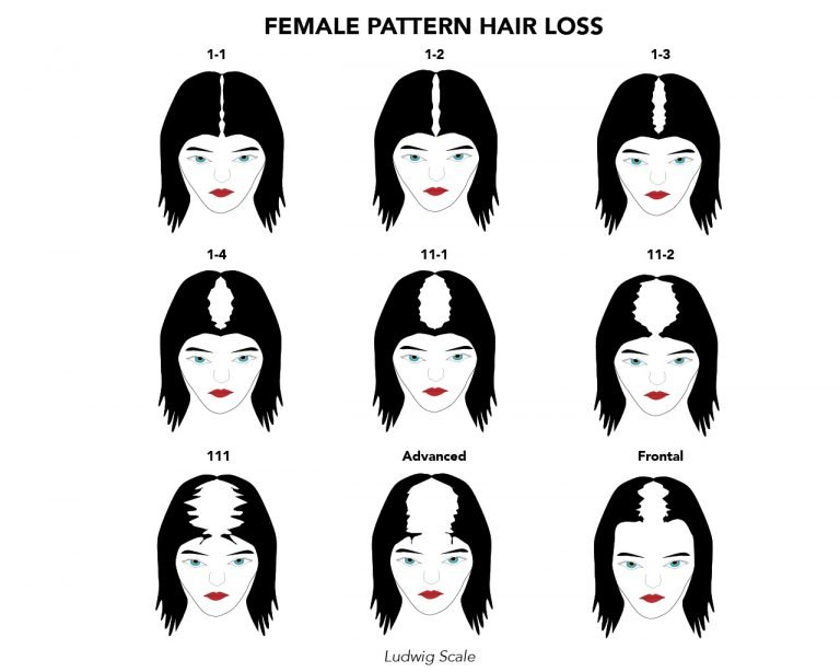 Female Hair Loss Pattern