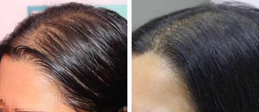 Female Hair Transplant in India
