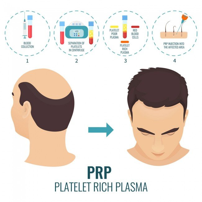 PRP Hair Treatment Procedure in India